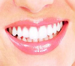 tooth sensitivity Wilmington Ohio Dentist